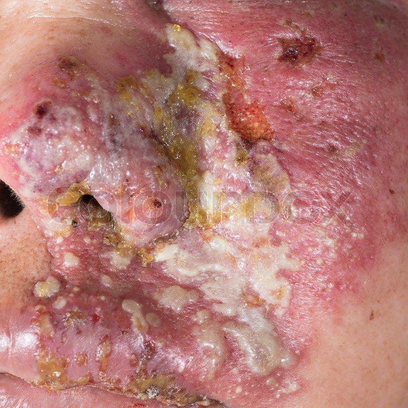 Allergisch Gurtelrose Lasionen Stockfoto Colourbox