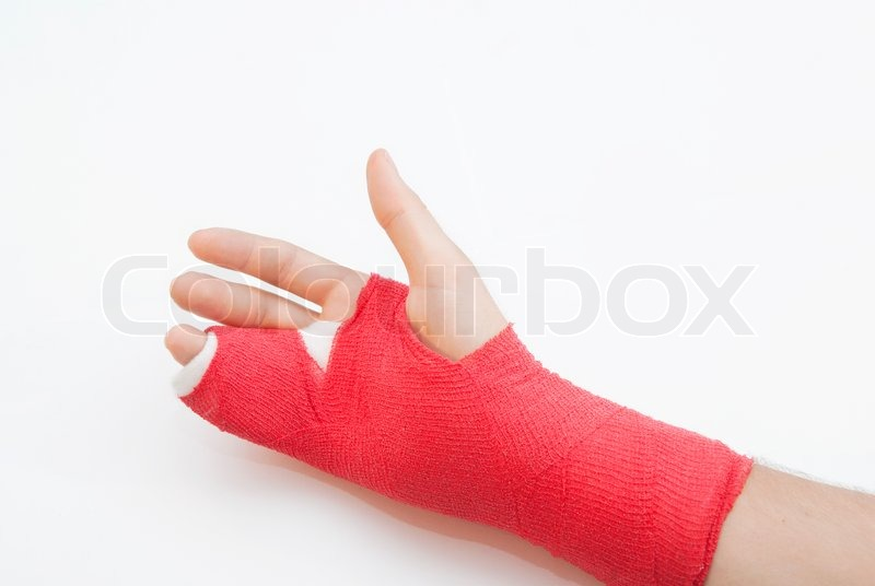Right Hand Bandaged In Red Plaster To Stock Image