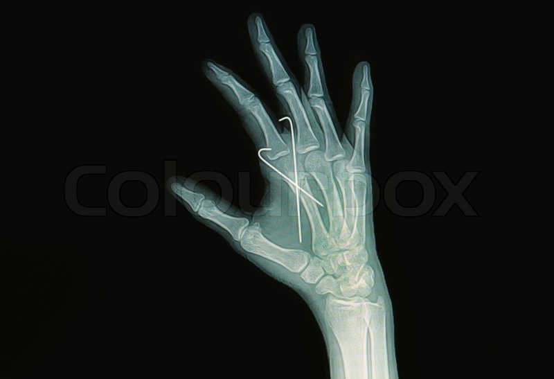 Hand x-rays image show fracture index finger inserted K-wire ...