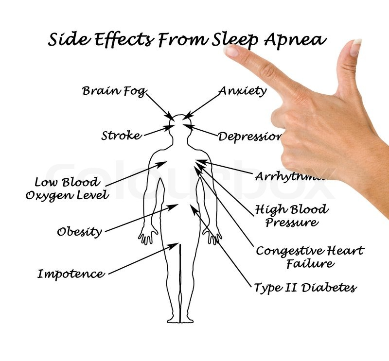 an introduction to the issue of sleep apnea in todays society Introduction obstructive sleep apnea syndrome (osas) is a common condition in childhood and can result in severe complications if left untreated.