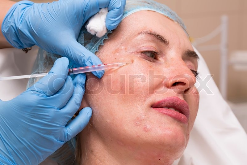 for cosmetic solutions injections Prep facial