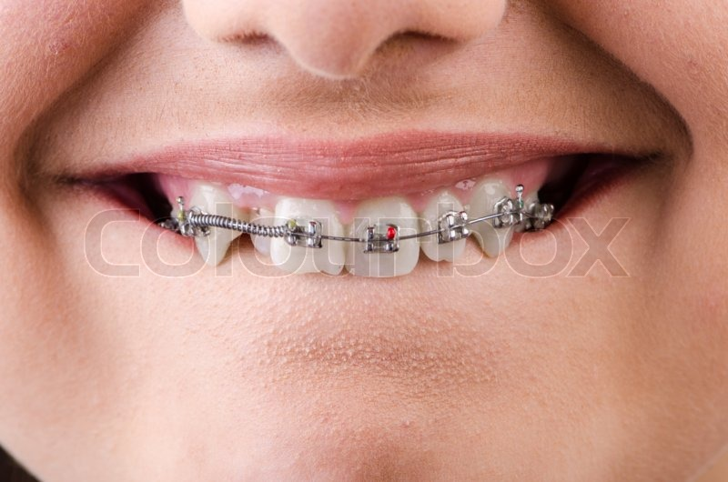 Stock image of 'Mouth with brackets braces in medical concept'