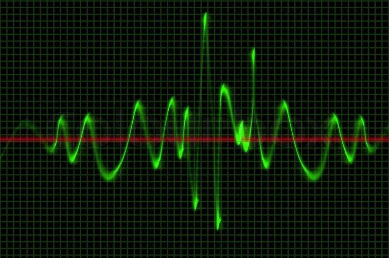 Oscilloscope Wave Sound Pattern