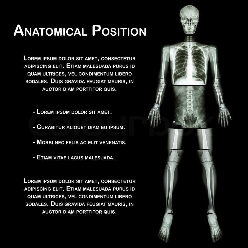 Anatomical Position. (X-ray whole body : head ,neck ,thorax ,heart ...