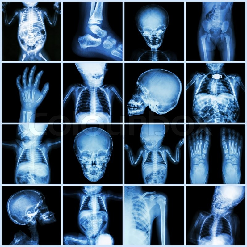 Collection X-ray part of child body ( Whole body : skull head neck ...