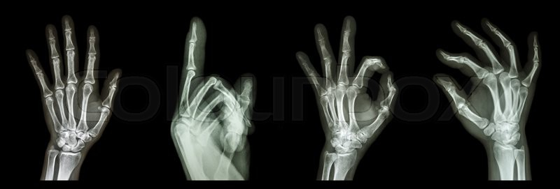 Collection X Ray Symbol Hands Stock Photo Colourbox