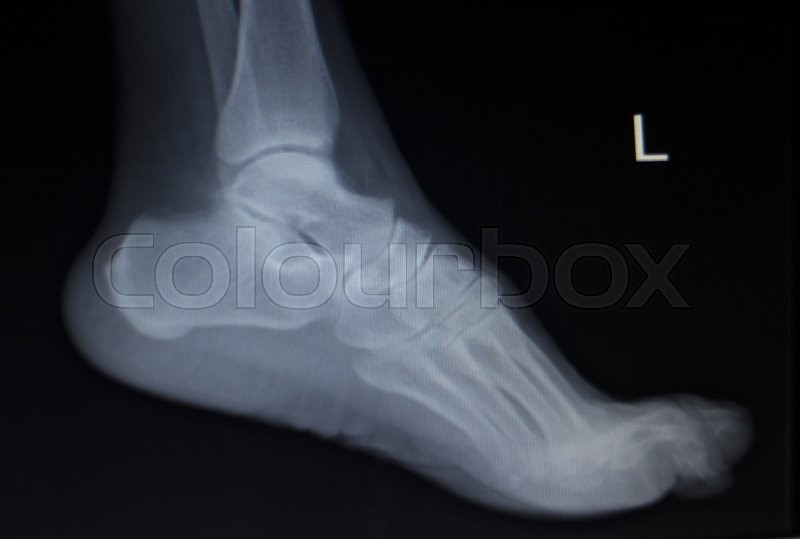 X-ray orthopedic medical CAT scan of painful foot injury in traumatology hospital clinic, stock photo