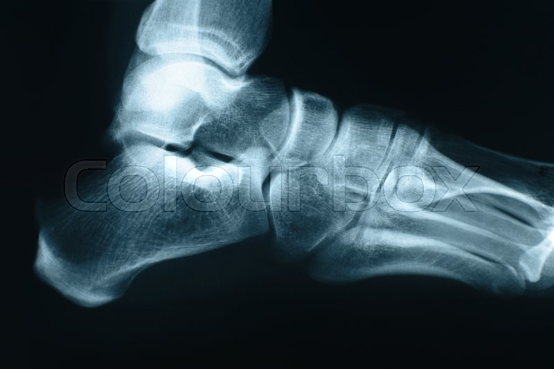 Stock image of 'Xray shot of right foot made in a hospital.'