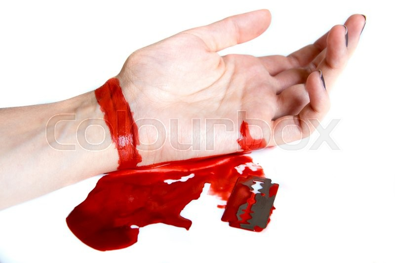 how to stop a deep knife cut from bleeding