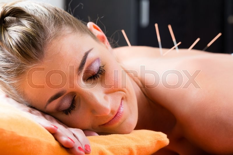 Woman at acupuncture session with needles in back having alternative therapy, stock photo