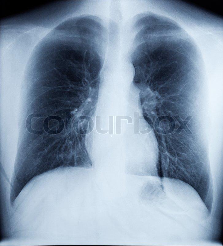 X-Ray Bild der menschlichen Gesund Brust   Stockfoto   Colourbox