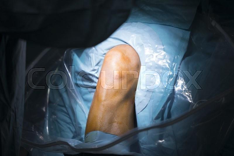 Traumatology orthopedic surgery hospital emergency operating room prepared for knee torn meniscus arthroscopy operation photo, stock photo
