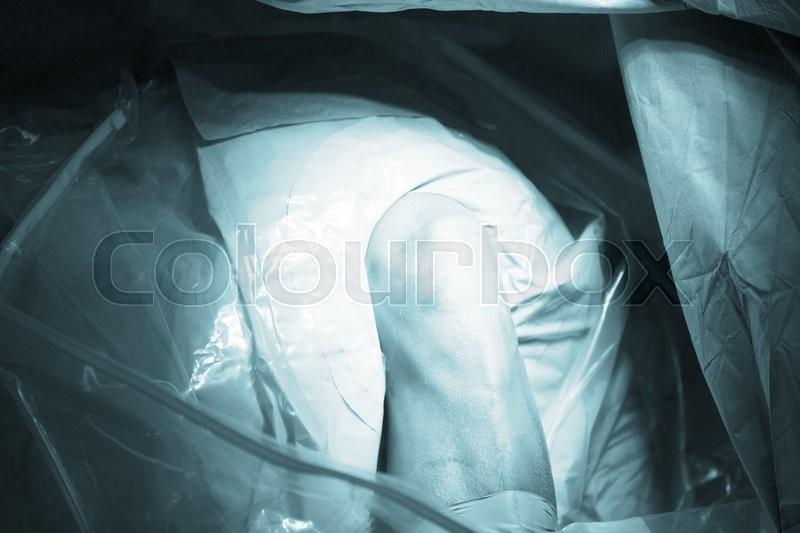 Traumatology orthopedic surgery hospital emergency operating room prepared for arthroscopy operation photo, stock photo