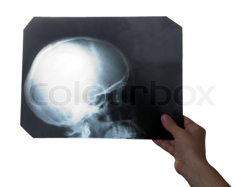 Röntgen Sie-Medizin-Film von menschlicher Schädelknochen in der hand ...