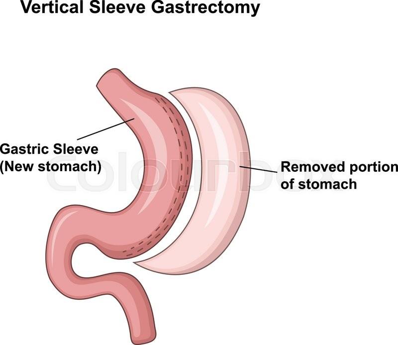 Vector illustration of Vertical Sleeve Gastrectomy (VSG) | Stock ...