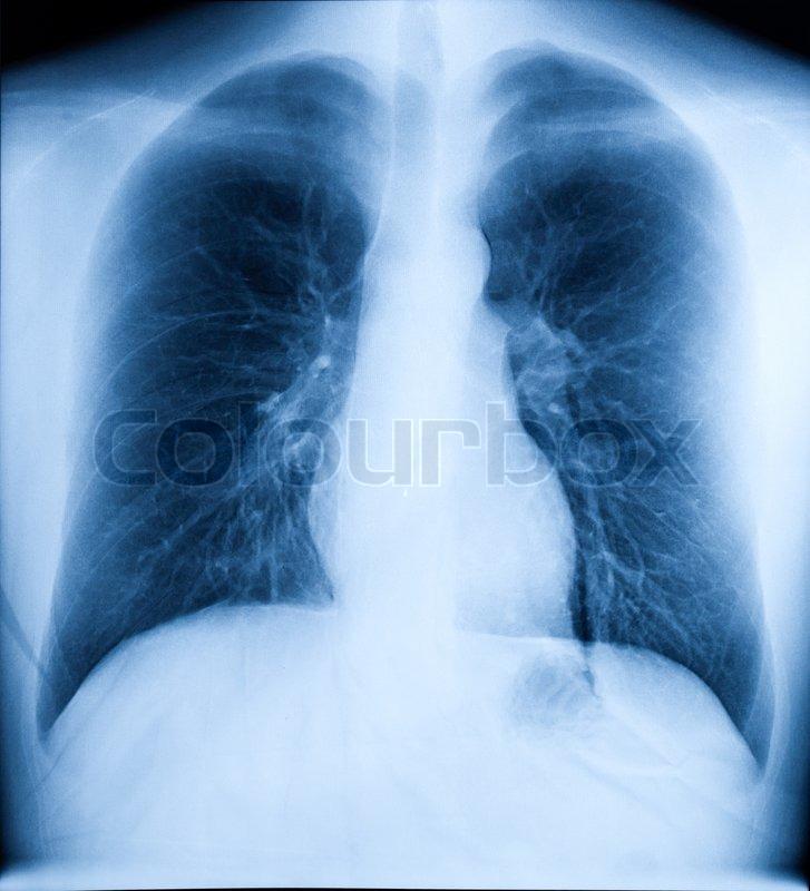 X- Ray Image Of Human Gesunde Brust | Stockfoto | Colourbox