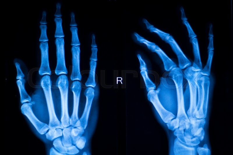 Hand, fingers and thumb hospital x-ray scan test results for joint pain and injury in orthopedic medicine and traumatology clinic, stock photo