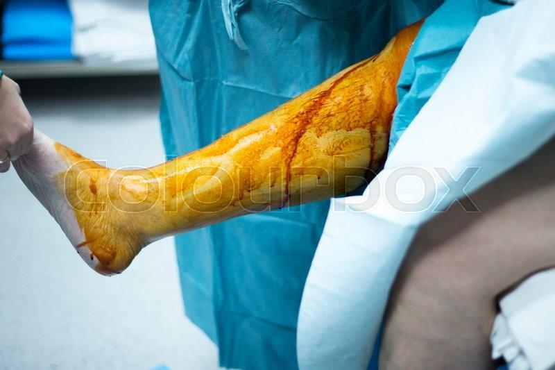 Knee arthroscopy orthopedic surgery operation in hospital emergency operating room sterilization of leg photo, stock photo