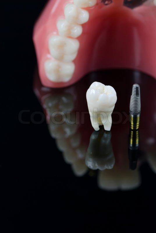 Real human teeth - photo#20