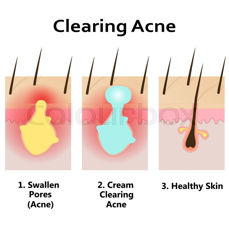 Ingrown Hair Structure Stock Vector Illustration Of Acne Manual Guide