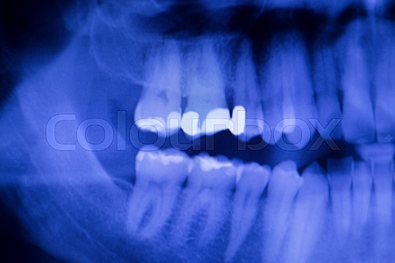 Dental teeth fillings, gum disease gingivitis dentists medical tooth x-ray test scan image, stock photo