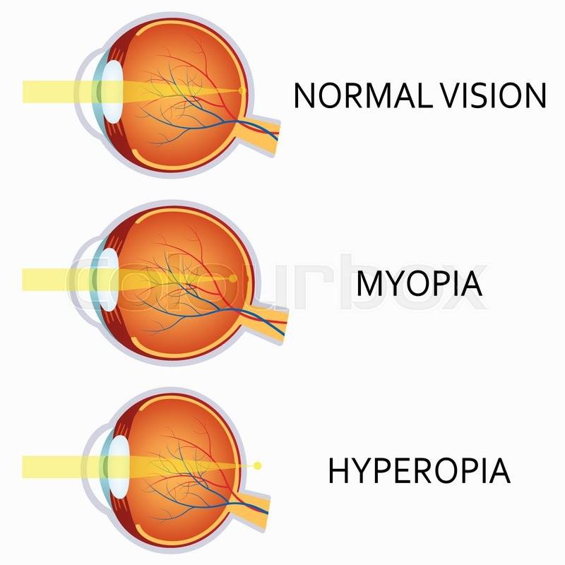 Optical Human Eye Defects Myopia And Stock Vector