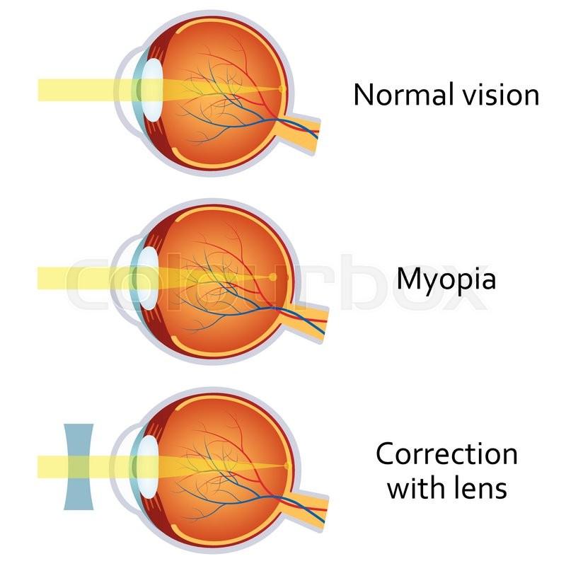 Myopia And Myopia Corrected By A Minus Lens Eye Vision Disorder