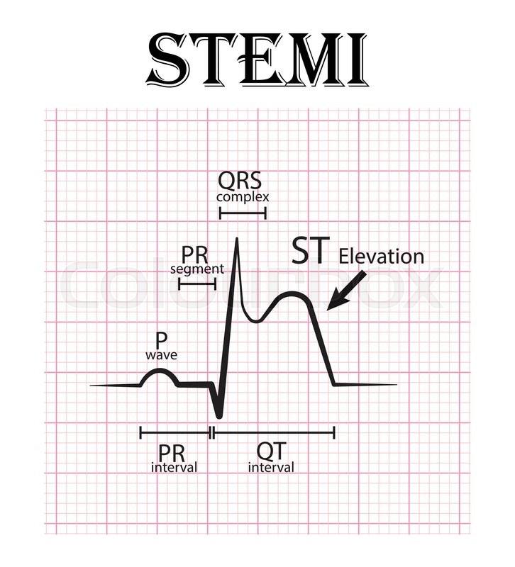 ecg of st elevation myocardial infarction stemi and
