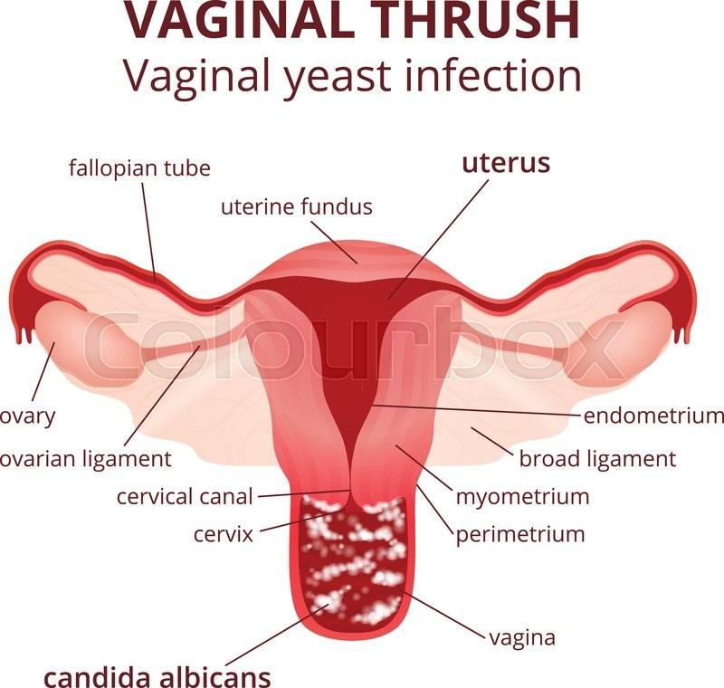 curvo Inglés vaginal