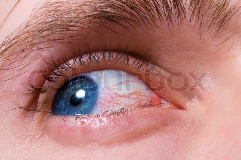 Blue men eye with red blood vessels     | Stock image | Colourbox
