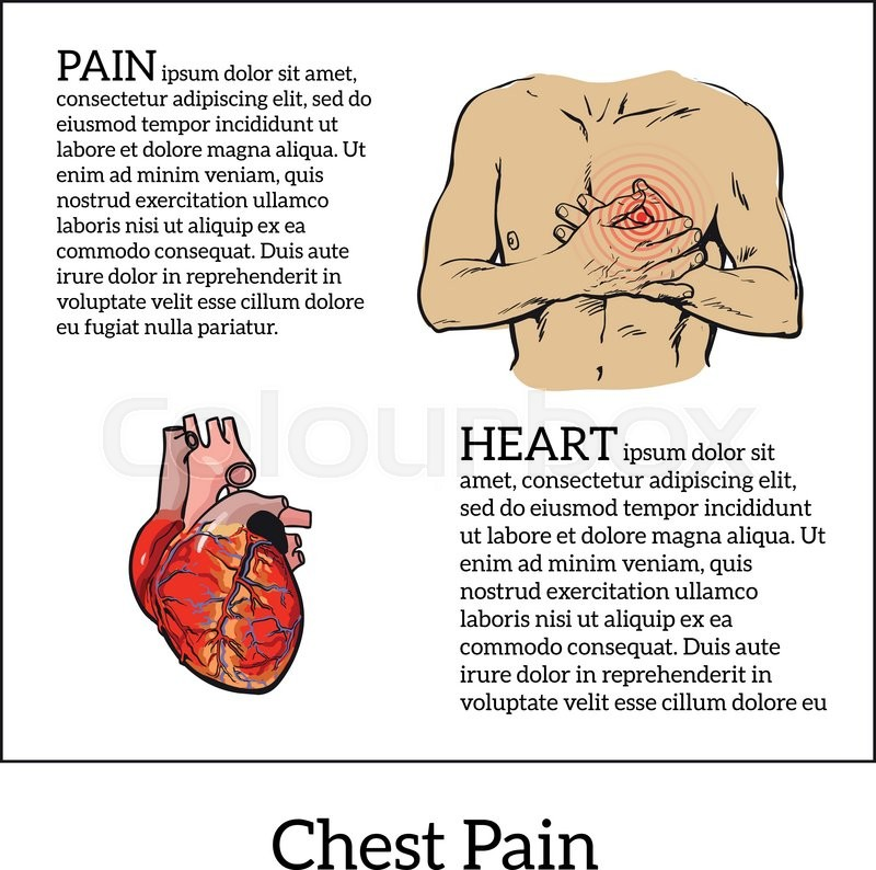 Information About Heart Pain Chest Pain In Men Anatomical Image Of