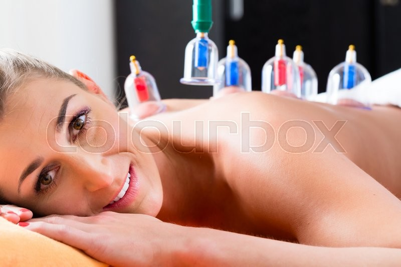 Woman in alternative medical cupping therapy with cups being applied on her back, stock photo