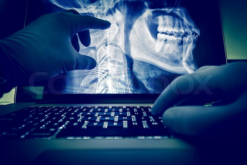 Stock image of 'Doctor Examining Spine and Head X Ray Scan Images on His Laptop Computer. Medical Application for X-Ray Display and Examination. Radiology Theme.'