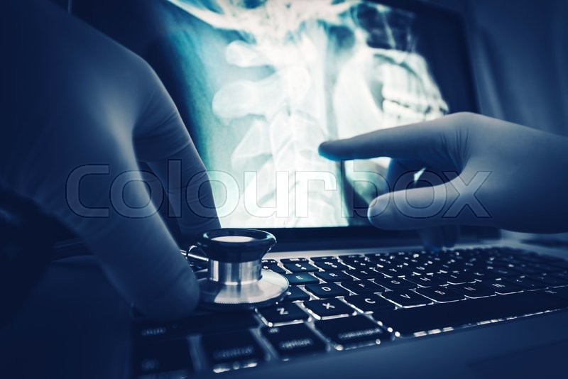 Doctor Xray Imagery Examination on the Laptop Computer. , stock photo