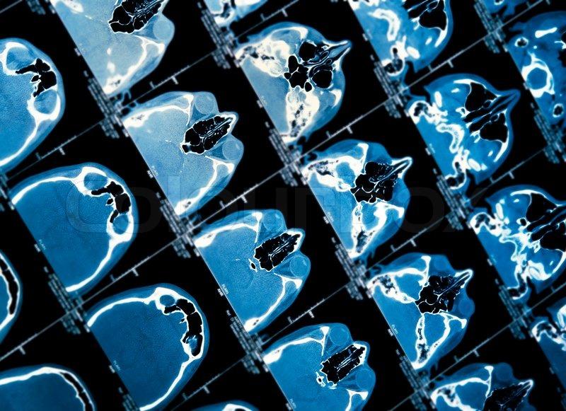 Nahaufnahme von einem CT-Scan Schädel   Stockfoto   Colourbox