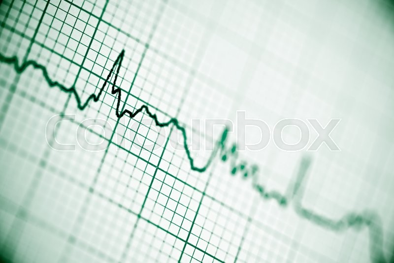 Stock image of 'Close up of an electrocardiogram in paper form.'