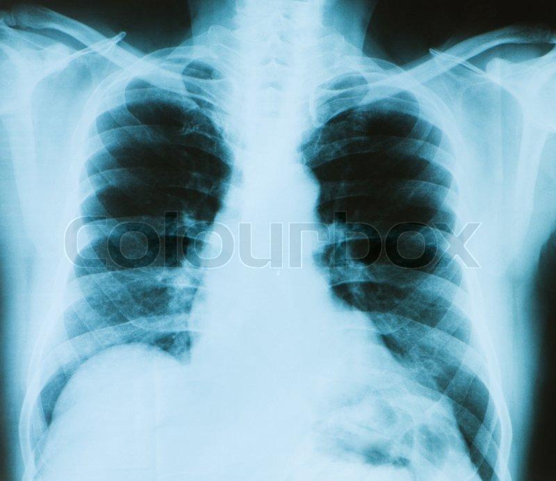 X -ray Bild der Brust Knochen der Erwachsenen | Stockfoto | Colourbox
