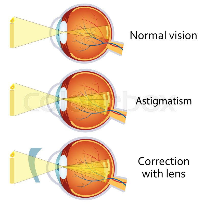 Astigmatism corrected by a cylindrical lens. Eyesight problem ...