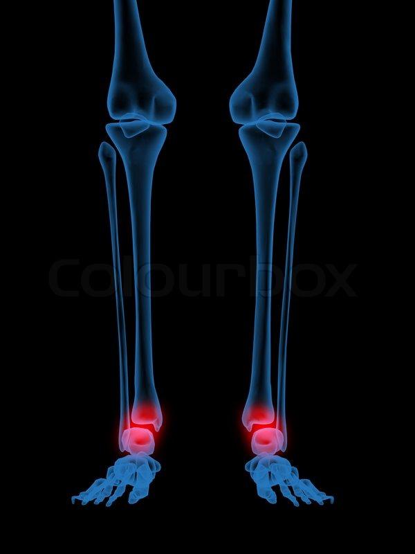 3D Röntgen-Abbildung der menschlichen Knöchel in rot | Stockfoto ...