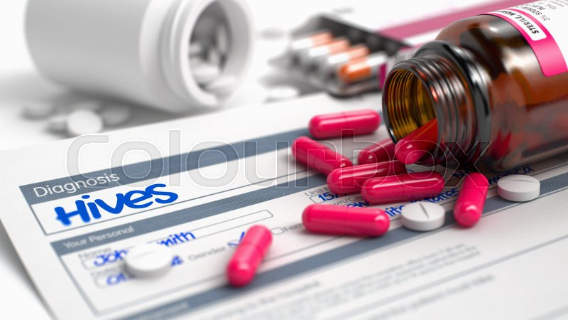 Stock image of 'Hives - Handwritten Diagnosis in the Anamnesis. Medicine Concept with Blister of Red Pills, Close Up View, Selective Focus. 3D Illustration.'