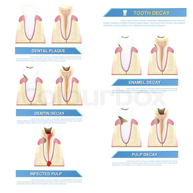 Infographic dental caries, stages of     | Stock vector | Colourbox