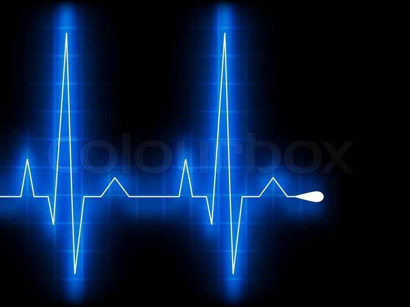 Grünes Herz höher schlagen. EKG-Diagramm. 8 EPS-Vektordatei ...