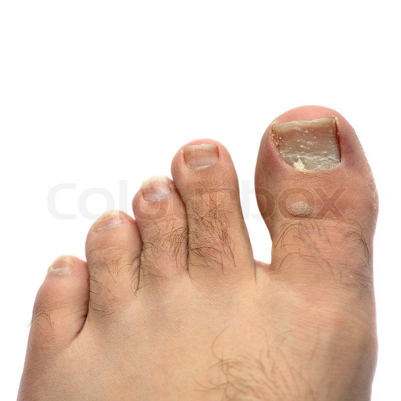 svamp på tånegle