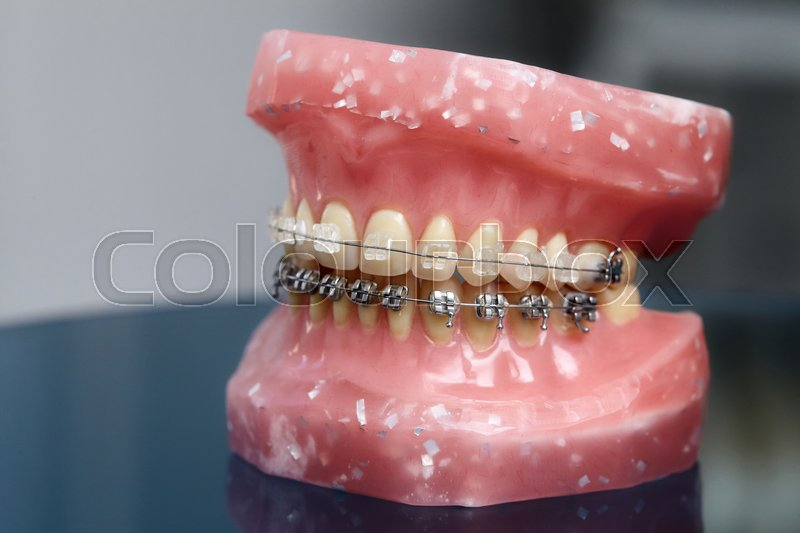 Prime Human Jaw Or Teeth Model With Metal Stock Image Colourbox Wiring 101 Orsalhahutechinfo