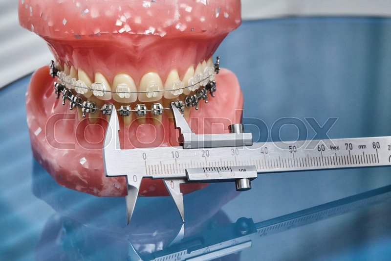 Human jaw or teeth model with metal wired dental braces and vernier ...