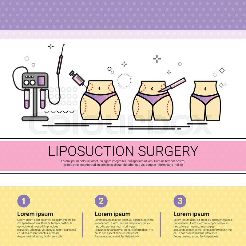 Liposuction Surgery Cosmetology Stock Vector Colourbox