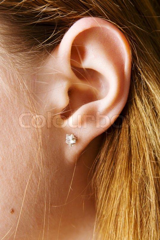 Asian Otoplasty - female ear pinback surgery