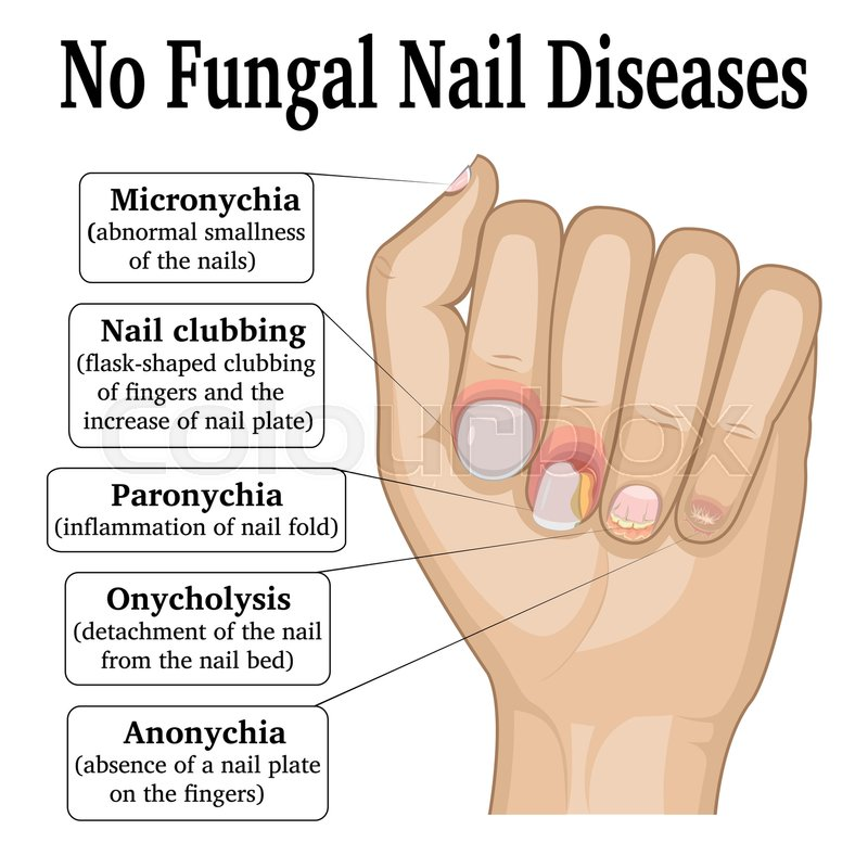 Illustration of five different non fungal nail diseases   Stock ...