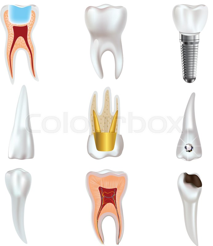 Dental Implant And Real Tooth Anatomy Icon Set Dental View