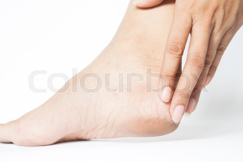 Stock image of 'Woman cracked heels with white background, Foot healthy concept'
